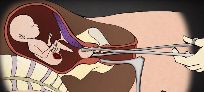 Desmembración de un bebé durante un aborto / Youtube