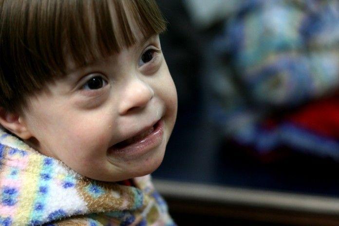 Niño con síndrome de down / Flickr Roberto Ortega